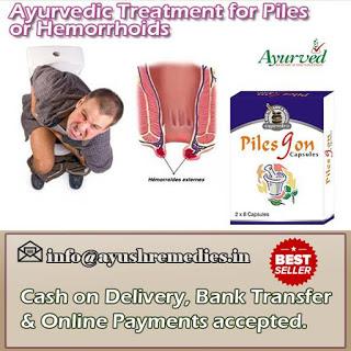 Ayurvedic Cure For Hemorrhoids